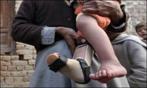 Polio-cases