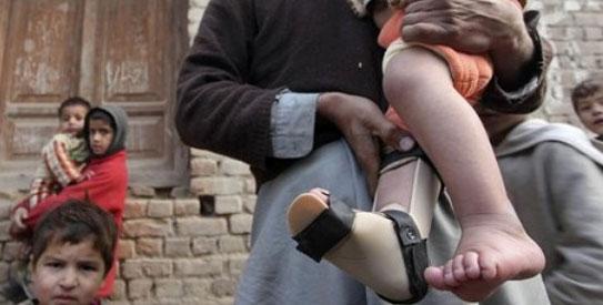 polio-pakistan-ap5431
